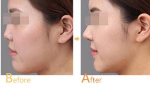 鼻尖整形前后对比是怎样的