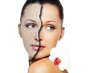 面部色素沉着疤痕怎样治疗