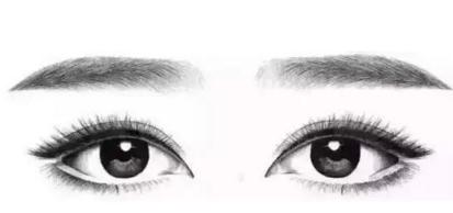 埋线双眼皮贵不贵 手术注意事项
