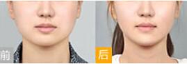 瘦脸针前后对比 美丽你自己的专利