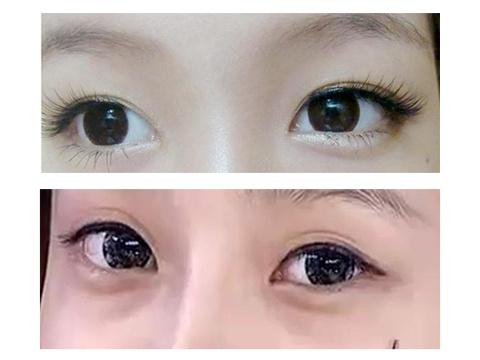 什么是卧蚕眼 和眼袋有什么区别