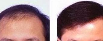 温州和平整形医院做毛发移植怎么样