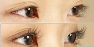 睫毛种植的效果是永久的吗