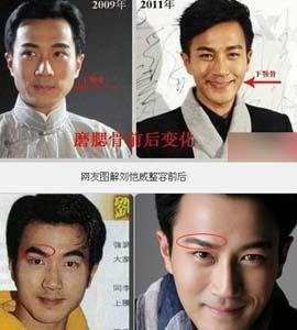 南通玫瑰整形刘恺威否整容过 我们疏忽他的演技