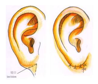 杯状耳矫正手术的优点 让耳部变得美丽自然