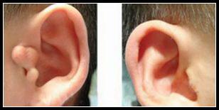 哈尔滨211整形医院附耳手术多少钱