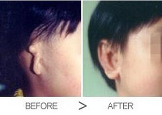 合肥壹加壹整形医院隐耳整形的方法
