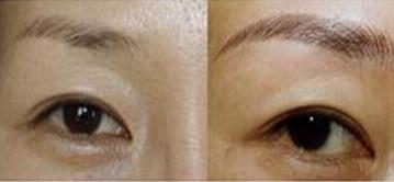 切眉手术后遗症 会留疤痕吗