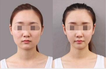 Botox瘦脸针效果如何