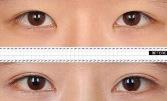 切双眼皮过程 适合皮肤松弛的求美者