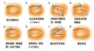 韩式双眼皮对比图 案例