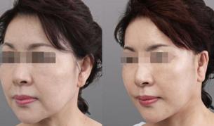 注射除皱术前术后对比