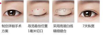 埋线双眼皮手术时间长吗