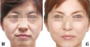 面部除皱术后遗症