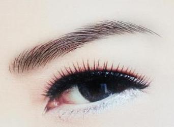 切眉除皱术怎么样 一术三效美眼功效