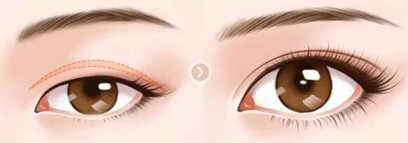 眼脸下垂的原因 矫正眼脸下垂有风险吗