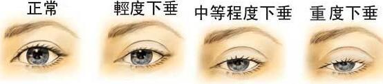 眼脸下垂矫正的缺优点 哪些人能做眼脸矫正术