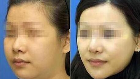 面部吸脂瘦脸后该怎么护理