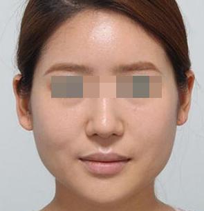 下颌角整形案例 做个真正的美人儿