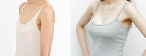 自体脂肪隆胸后要注意什么