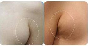 副乳切除手术有什么特点