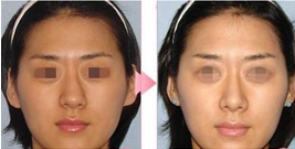 歪鼻修复经验分享