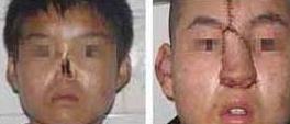 鼻部再造术前术后对比
