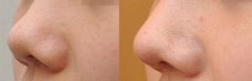 朝天鼻整形治疗过程