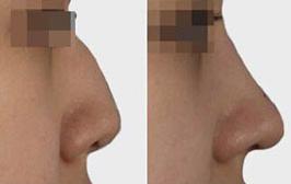 驼峰鼻术后注意事项