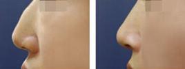 鹰钩鼻整形术前术后对比