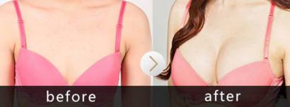 自体脂肪丰胸前后对比