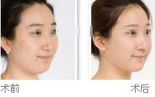 面部溶脂针案例分享
