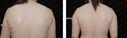 背部吸脂案例 效果图