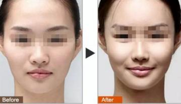 影响面部除皱的价格因素有哪些