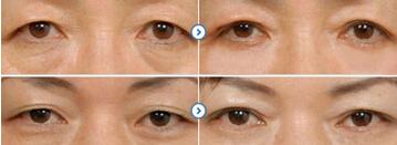 祛眼袋手术方法有哪些
