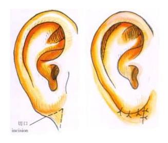 副耳切除后影响听力吗
