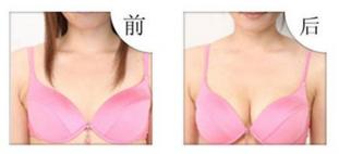 上海天大隆胸后如何护理