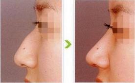 驼峰鼻矫正恢复时间是多久