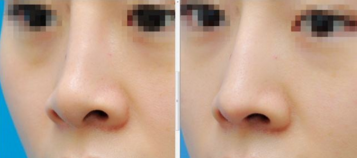 鼻头缩小对年龄有什么要求吗