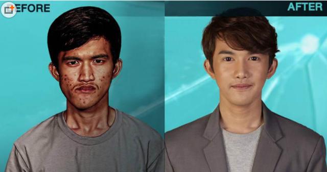 青岛华颜美整形医院泰国丑小伙赴韩国整容变美男,连亲妈都认不出他了