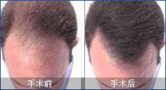 福州曙光头发移植价格