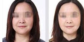 面部除皱提升术让你重拾青春