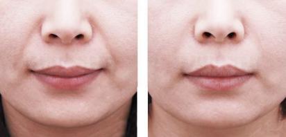 淡化法令纹 让肌肤更年轻