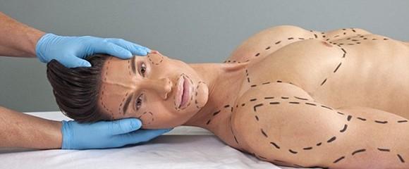 沈阳伊尔美整形医院国内外网站常客 美国男子整容成芭比男友让人惊叹