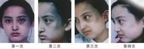 北京黄寺激光去胎记效果怎么样