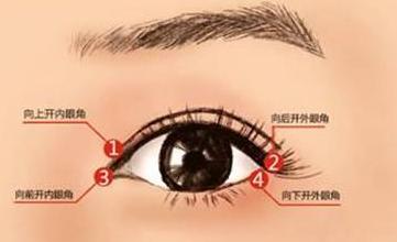 南京克拉美整形医院开了眼角,眼睛放大了两倍
