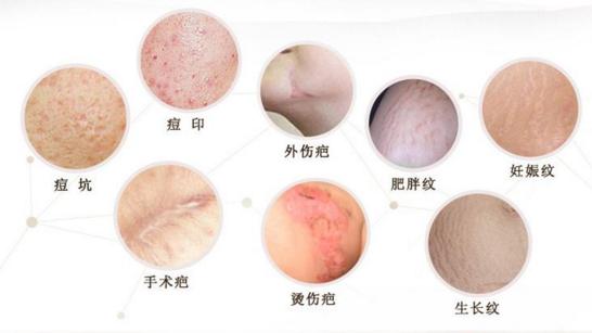 上海百达丽激光祛疤要多少钱