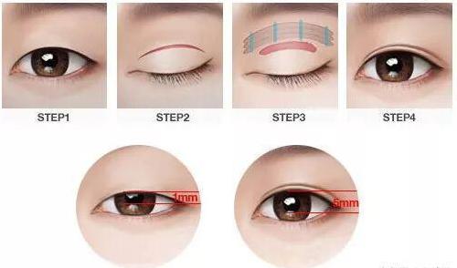 整形秘籍:双眼皮术后最重要的五个阶段