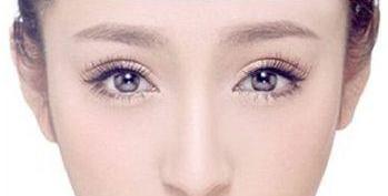 黑眼圈形成的5个原因