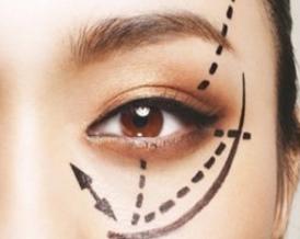 割双眼皮和开眼角的区别